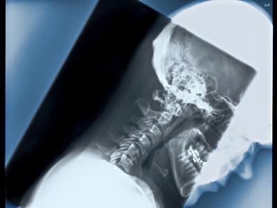 颈椎病/中医治疗颈椎病的三大土方
