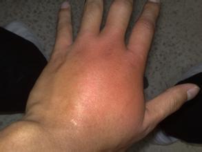 蚂蚁咬伤皮肤又红又肿怎么办