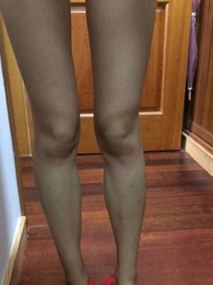 未生育腿部吸脂
