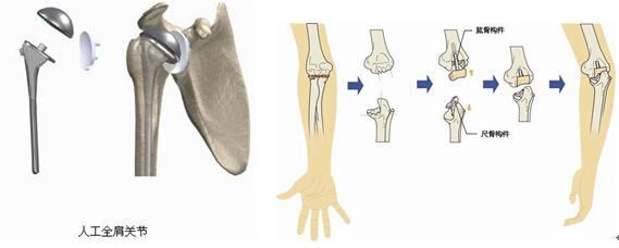 图-强直性脊柱炎 (3)老年性骨性关节炎。这类人群是接受人工关节置换的主要群体。原因是人体关节随着年龄的增长,出现关节骨质增生,变形疼痛。严重的影响了人的生活动,特别是膝关节。使一部分患者生活自理都很困难。  图-膝关节骨关节炎,严重内翻畸形 通过人工关节置换彻底解决了关节疼痛及变形。