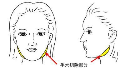 磨骨瘦脸 让你国字脸变锥子脸__寻医问药_xywy.com