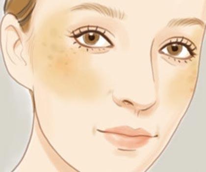 揭秘:脸上不同部位长斑说明什么