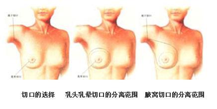 隆胸手术的5种切口 你如何选择